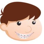 question about braces