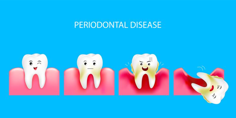 EverSmile-Dentistry_Sterling-Virginia_How-to-Prevent-Gum-Disease