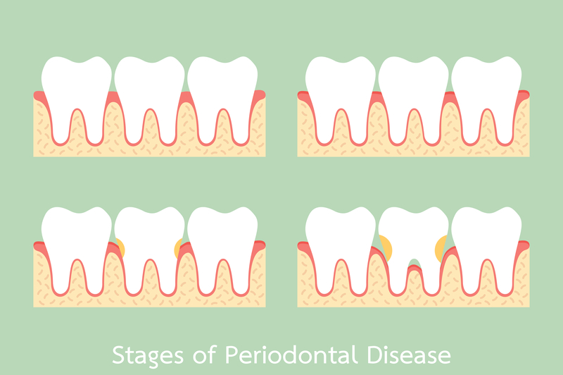 6 Questions About Periodontal Gum Disease