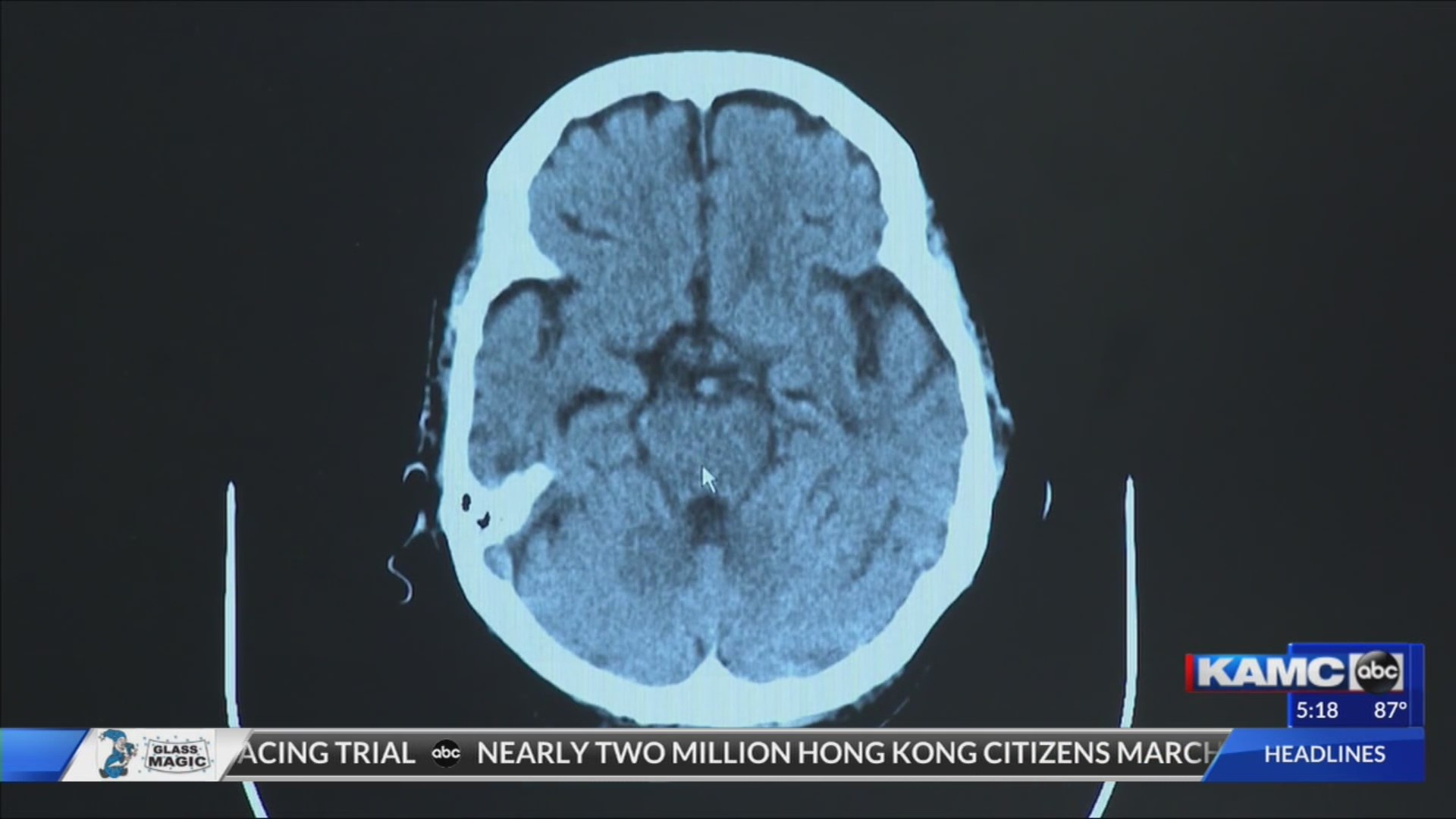 Healthcast: New hope for Alzheimer's disease