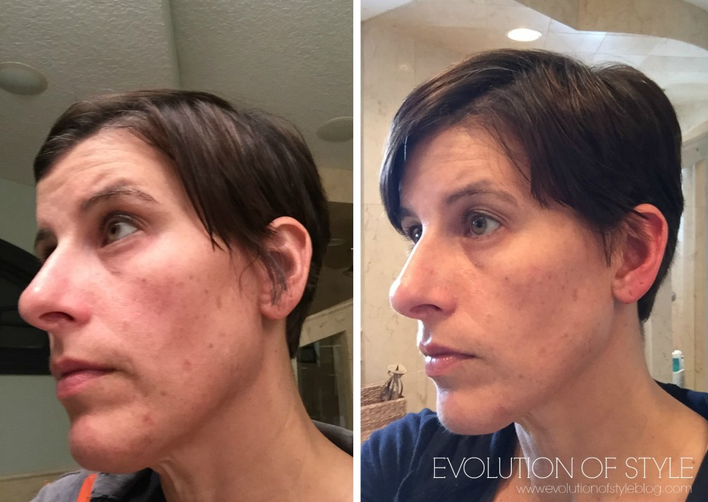 rodanfields skin care before and after
