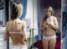 El 15% de las menores con acceso a internet visitan paginas web pro anorexia o bulimia