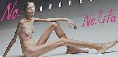 Muere la modelo anoréxica Isabelle Caro
