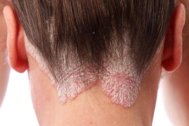 Naturalne metody leczenia łuszczycy