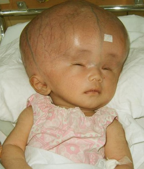 Another infant with Hydrocephalus