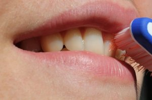 causes of Swollen Gums