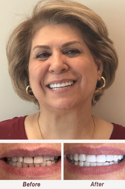 Smile Makeover Cerec Veneers Palo Alto