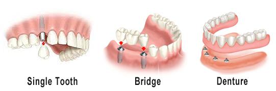 Dental Implant Bridges and Dentures Palo Alto