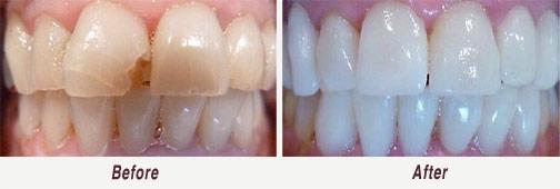 Dental Veneers in Palo Alto Before & After Image