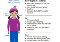 Frostbite early signs winter storm Evolve Medical Clinics Maryland Direct Primary Care family medicine urgent care
