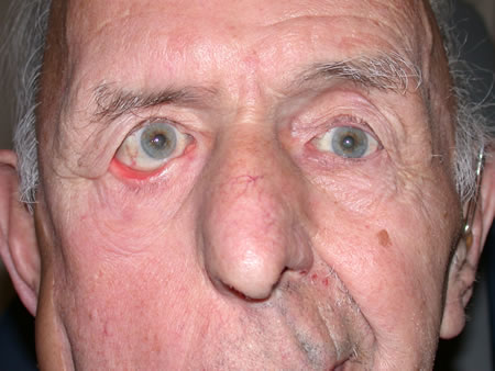 Image result for eyelid ectropion bell's palsy
