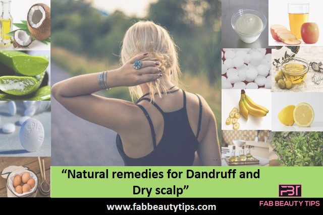 natural dandruff remedies that really works,natural remedies for dandruff,natural remedies for dandruff and dry scalp,natural ways to treat dandruff