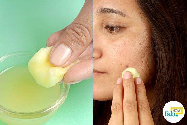 lemon juice for dark spots