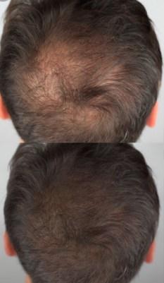 Micro-Needling Hair