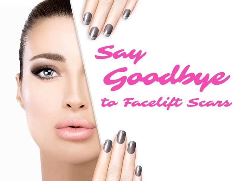facelift-scar-removal