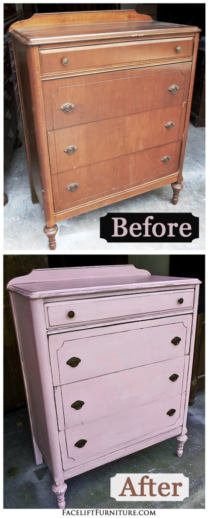 Pink Chest Before & After