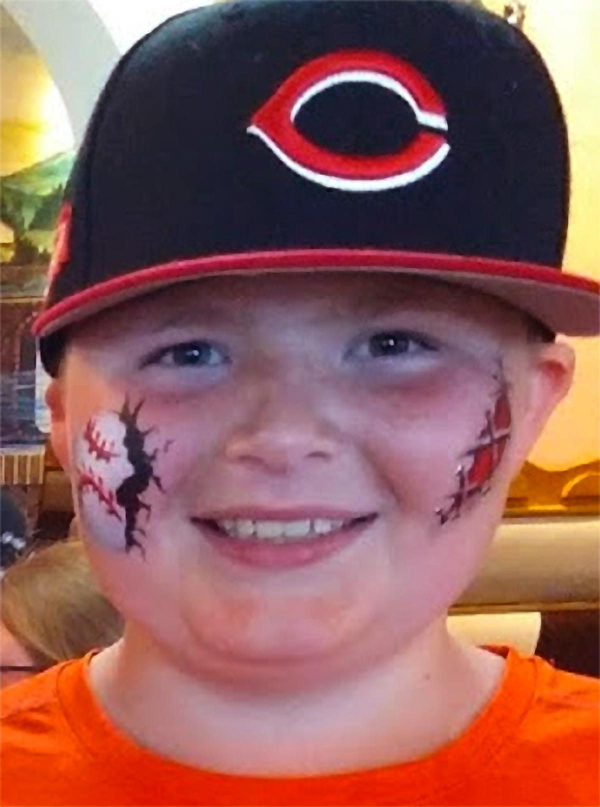 Baseball-scar