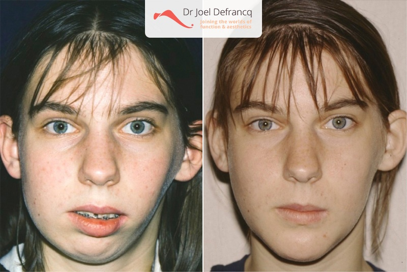 Face Reconstructive Surgery And After