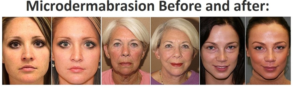 How to do a microdermabrasion at home microdermabrasion results solutioingenieria Gallery
