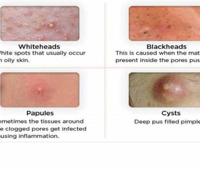 Most People Are Not Aware That There Are Different Types Of Acne