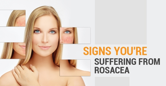 Signs-You're-Suffering-From-Rosacea