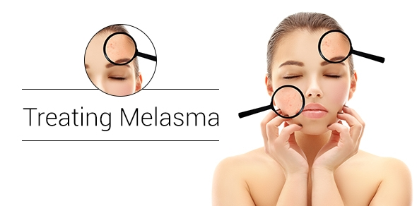 Treating-Melasma