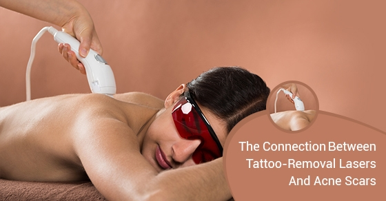 The-Connection-between-Tattoo-Removal-Lasers-And-Acne-Scars