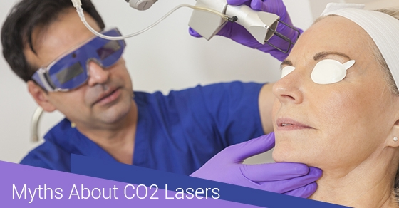 CO2 Lasers