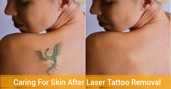 Skin After Laser Tattoo Removal