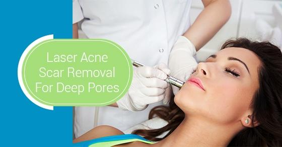 Laser Acne Scar Removal For Deep Pores