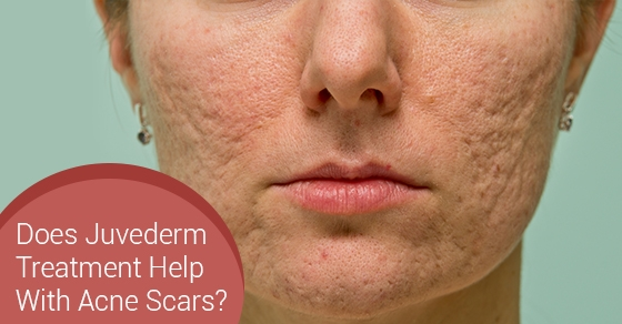 Does Juvederm Treatment Help With Acne Scars?