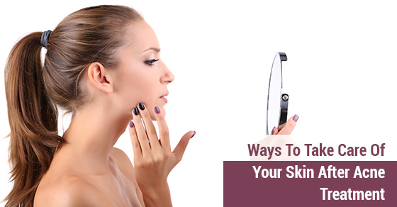 Ways To Take Care Of Your Skin After Acne Treatment