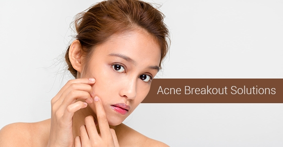 Acne Breakout Solutions