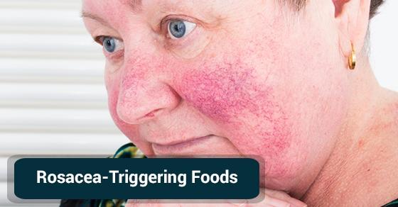 Rosacea-Triggering-Foods