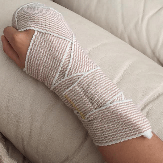 R arm splint