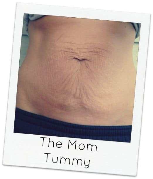 Before-Tummy-Tuck-Mom-Tummy
