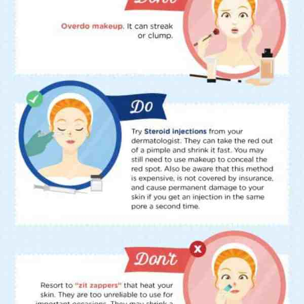 Are You Prepared For Wedding Day Pimples?