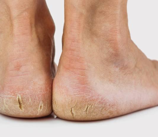 cracked heels faiza beauty cream