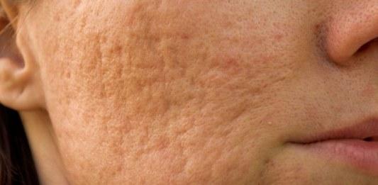 Female Acne Scars Faiza Beauty Cream