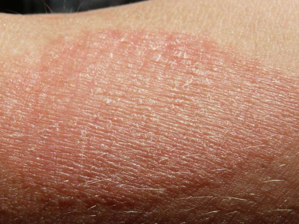 Deadly Symbols Of Skin Cancer You Must Spot Early Fajar Magazine