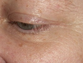 Family Clan Blog Jerome Alexander Lashtech Eye Lash Enhancing Serum Side View 2 Week 2