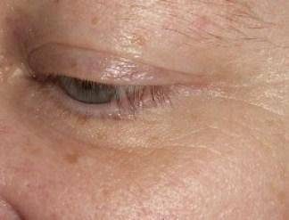 Family Clan Blog Jerome Alexander Lashtech Eye Lash Enhancing Serum Side View 2 Week 2