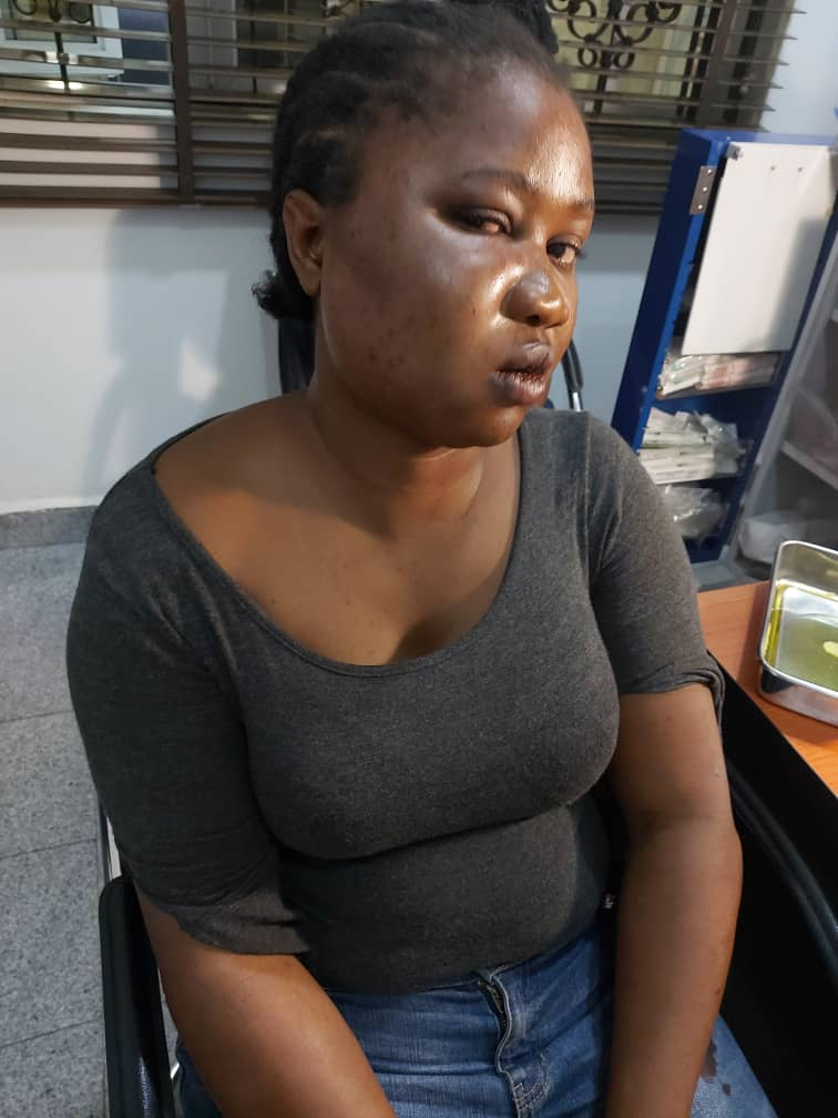 Lady Narrates Her Ordeal In The Hands Of Criminals