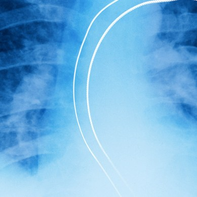 Hacking pacemakers and medical implants gets harder as FDA issues new cybersecurity guidelines