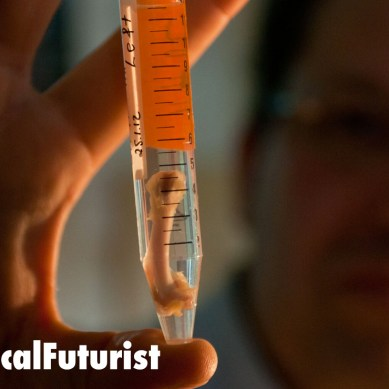 World's first stem cell bone tissue transplant is a success