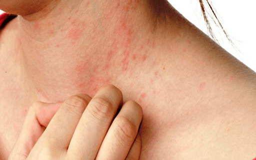Causes of Eczema and prevention