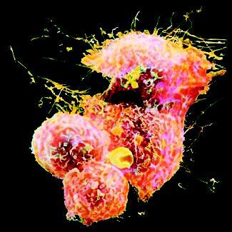 Hodgkin's lymphoma cells. This form of cancer begins in a lymph node—often in the neck—then progresses to other nodes. (Photograph by Andrejs Liepins. Reproduced by permission of Photo Researchers, Inc.)