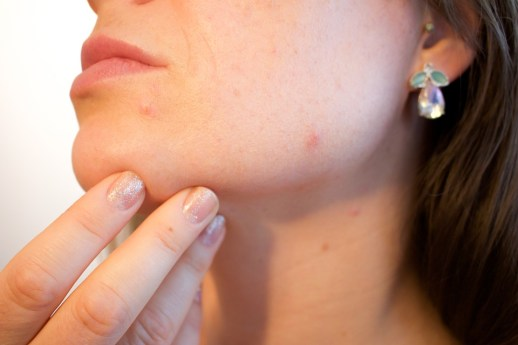 qué puede dañar mi piel