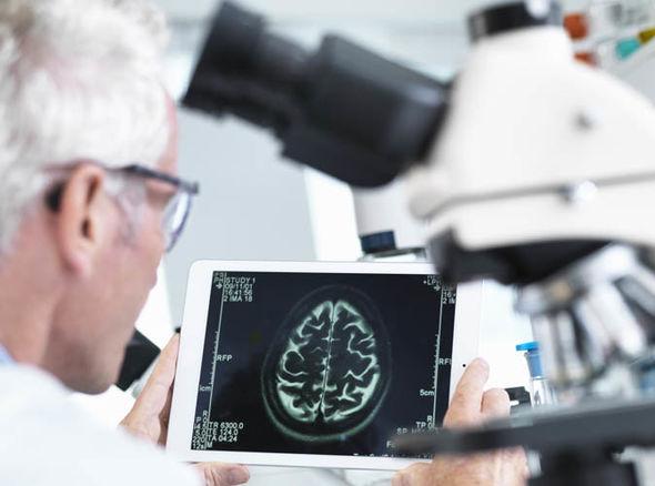 salute del cervello