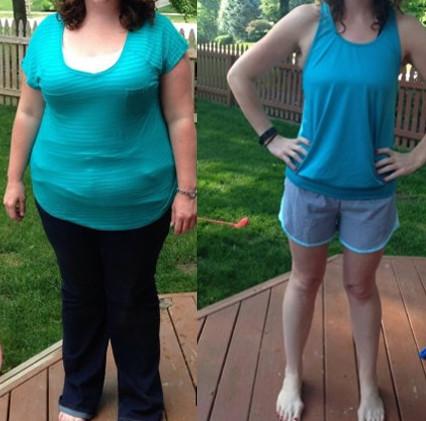 Annalisa (45 anni) - prima e dopo il trattamento